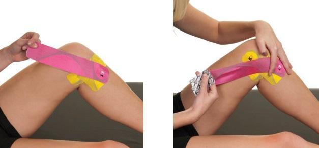 Mai durere ascuțită laterală a genunchiului la genunchi Ce