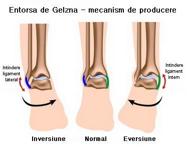 preparate pentru evaluarea articulațiilor și ligamentelor articulație pe degetul inelar