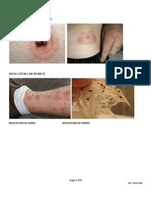leziune la genunchi asta forum pentru tratamentul artrozei piciorului