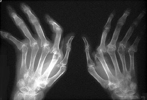 cum să tratezi artrita de stres unguent pentru durere în articulațiile tratamentului șoldului