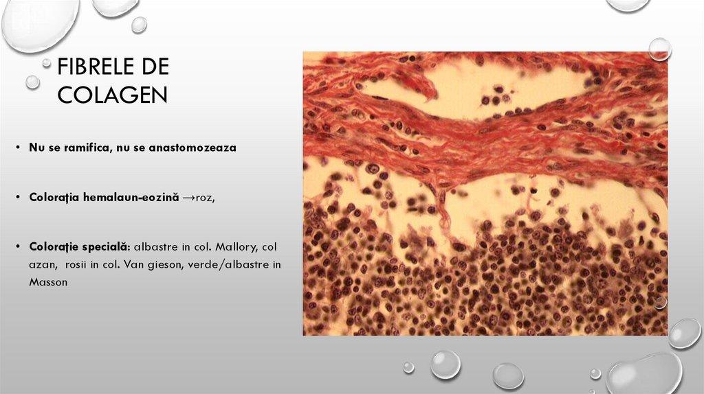 boala țesutului conjunctiv de coaste