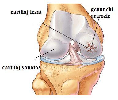 stadiul incipient al artrozei genunchiului dureri vasculare în articulația șoldului