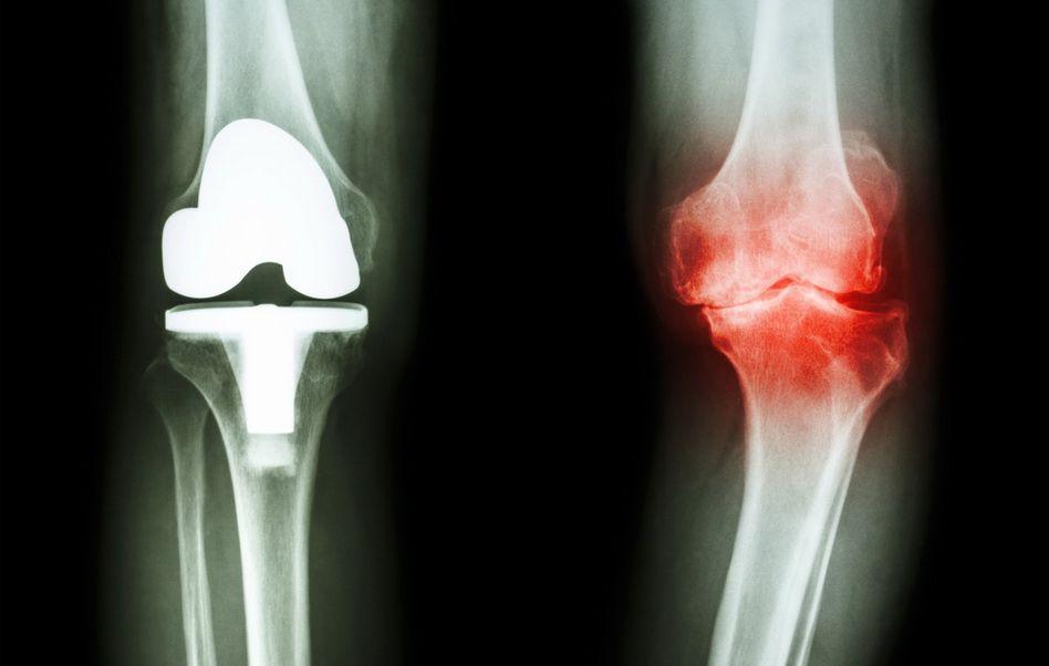 radiografia artritei genunchiului