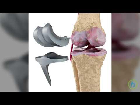 Steroizi pentru artrita Deca Durabolin în tratamentul articulațiilor