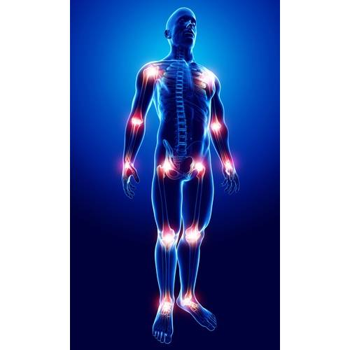 mediu de durere articulară