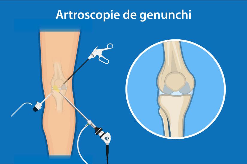 examinarea și tratamentul genunchiului