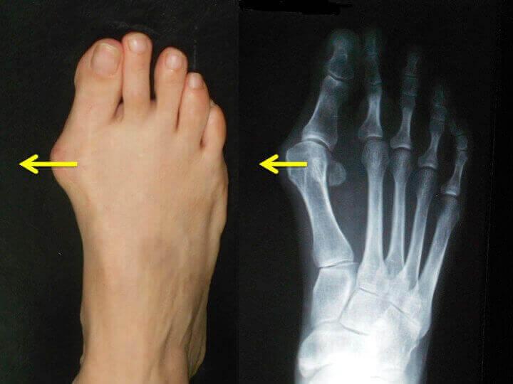 refacerea ligamentului articulației umărului Daune XA la gleznă