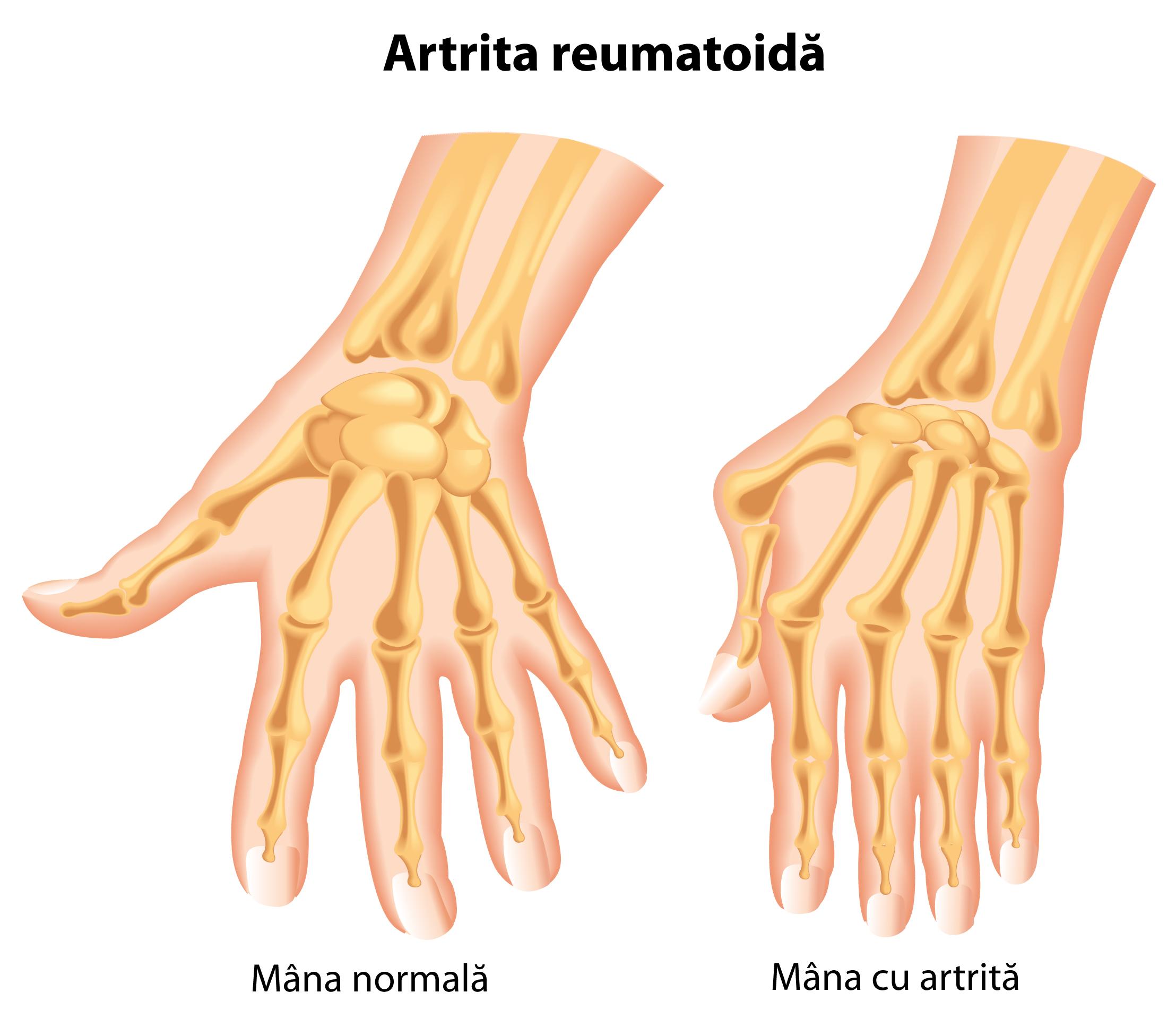 artrita nu extinde degetele