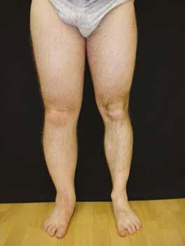Picioarele umflate (edemele) - Clinica de cardiologie Cardioclass