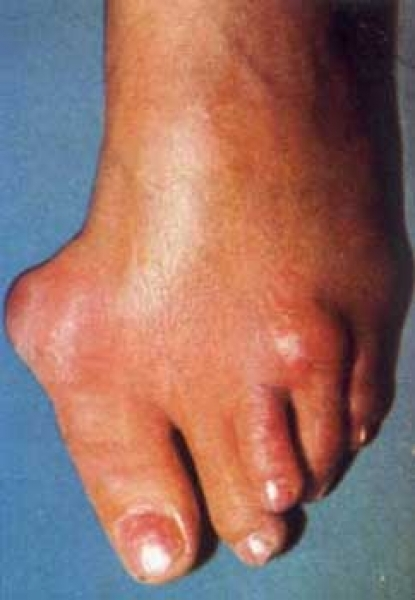 febră și durere la genunchi