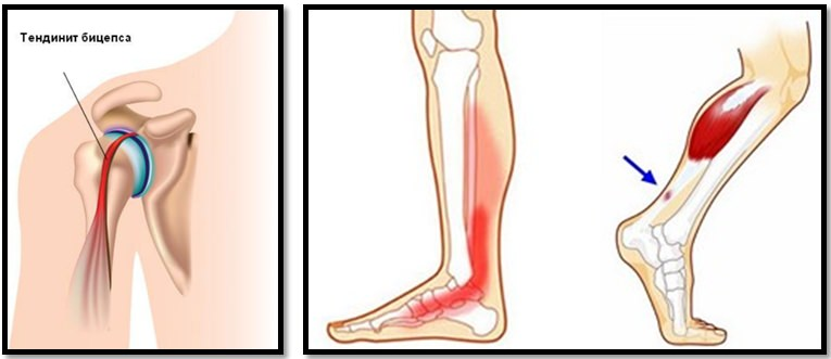 Reumatologia si bolile reumatice, Inflamația articulației tratamentului degetelor mari