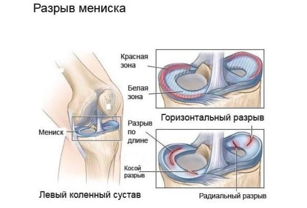 лечение левого коленного сустава