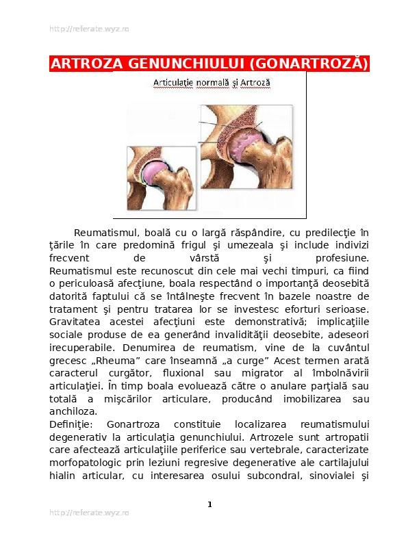 dureri articulare severe cu răceli articulațiile pe mâini sunt foarte dureroase