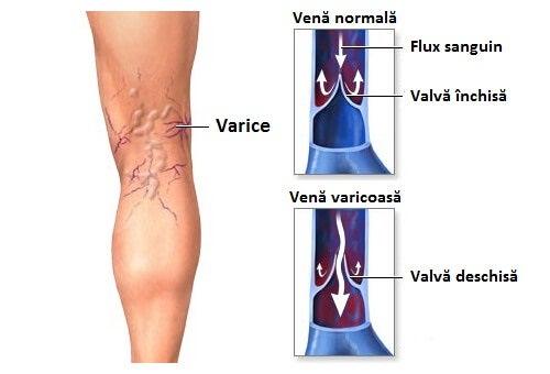 tratamentul artrozei piciorului datorată picioarelor plate dureri de la fese până la genunchi