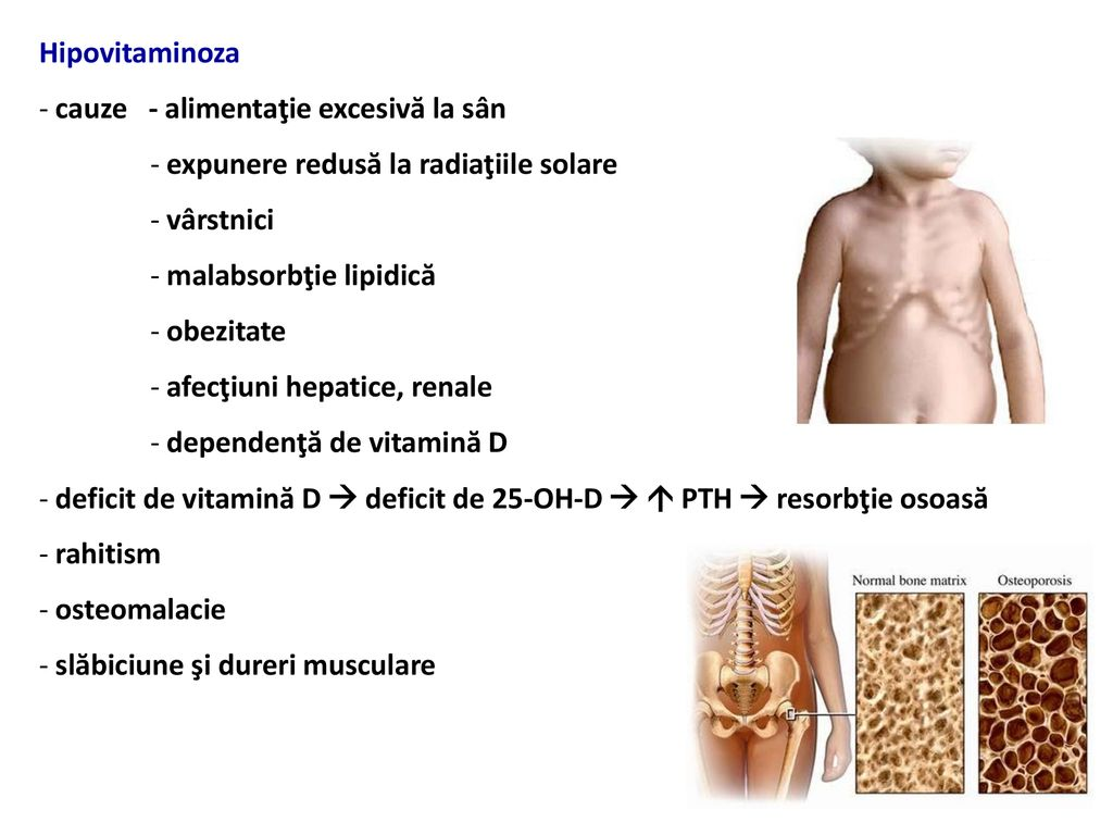 durere articulară hipervitaminoză vitamina A