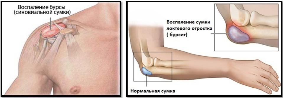 De ce rănesc și rănesc articulațiile - De ce rănesc articulațiile și oasele mâinilor