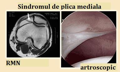 Sindromul pliului mediopatelar al tratamentului articulației genunchiului - ipa-law.ro