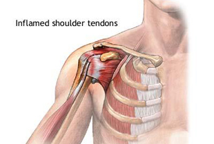tratarea leziunilor tendoanelor articulației umărului