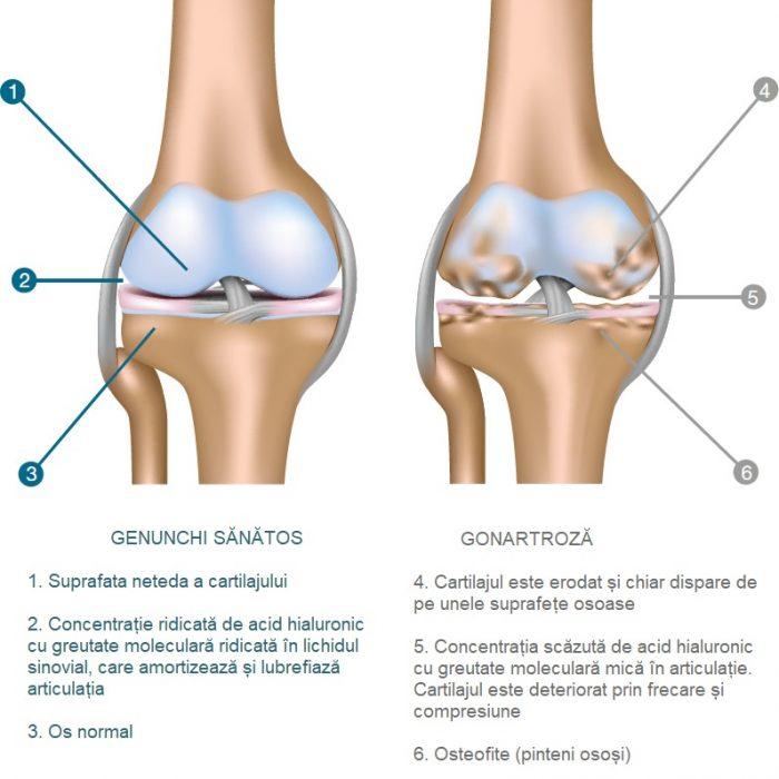 edem osos în articulația genunchiului