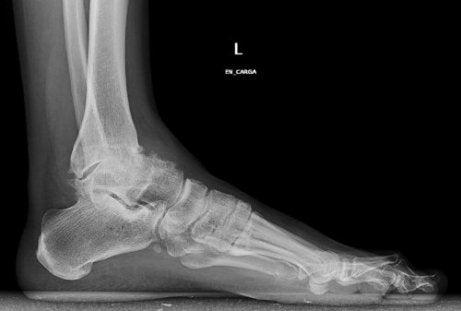 durere în picior între degete și articulație