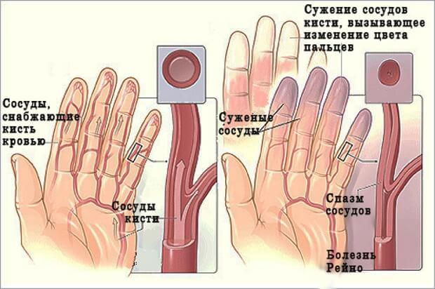 lyudmila ermolenko de ce rănesc articulațiile