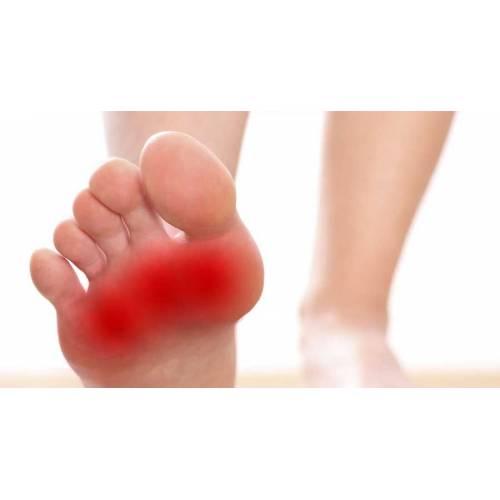 Semne de alarma: umflarea picioarelor (edem) | ipa-law.ro