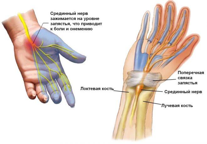 durere în articulația degetului arătător al mâinii drepte
