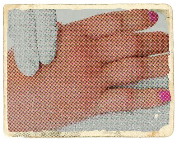 ameliorați umflarea articulațiilor