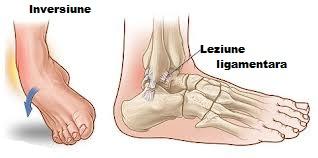 boală ligamentară a gleznei Dureri pline de durere la nivelul articulațiilor genunchiului