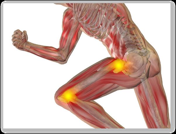 chondrogard pentru dureri la nivelul articulației șoldului dau un grup pentru artroza articulară