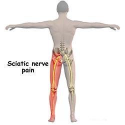 Institutul de Tratament cu Artroză tratamentul la rece al articulației șoldului