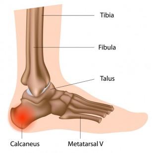 Dureri de cot în urma ridicării greutății - Articulația genunchiului merge