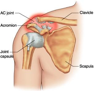 tratament conservator al rupturii ligamentelor articulației umărului comprese pentru dureri severe la nivelul articulațiilor