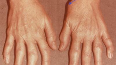 artrita pe degetul mare cum se tratează