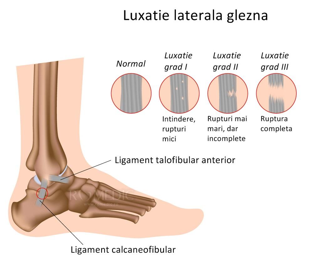 boală ligamentară a gleznei