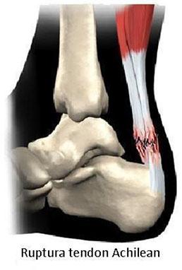 tratamentul articulațiilor tendonului