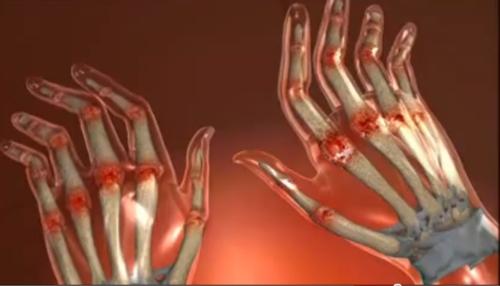 cum se tratează artrita seropozitivă reumatoidă