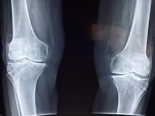 tratamentul artritei articulare a genunchiului