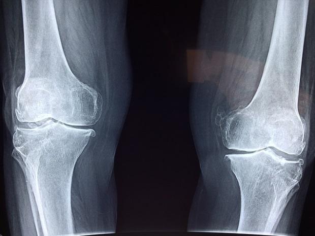 degetul umflat de artrită