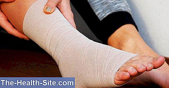 Deteriorarea ligamentelor gleznei, Simptome de ligamente complete lacrimă în gleznă, o lacrimă