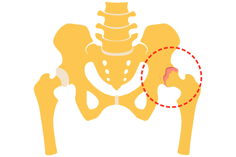 tehnici fizioterapeutice pentru bolile articulare