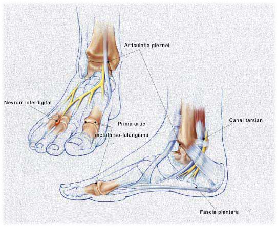 Sinovita articulației glezne: cauze, simptome, metode de tratament - Artrită November