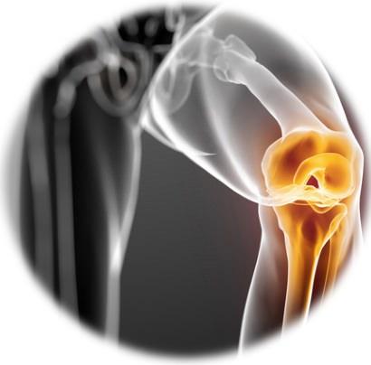 urmăriți cum să tratați articulațiile ceea ce este interzis cu artroza articulației genunchiului