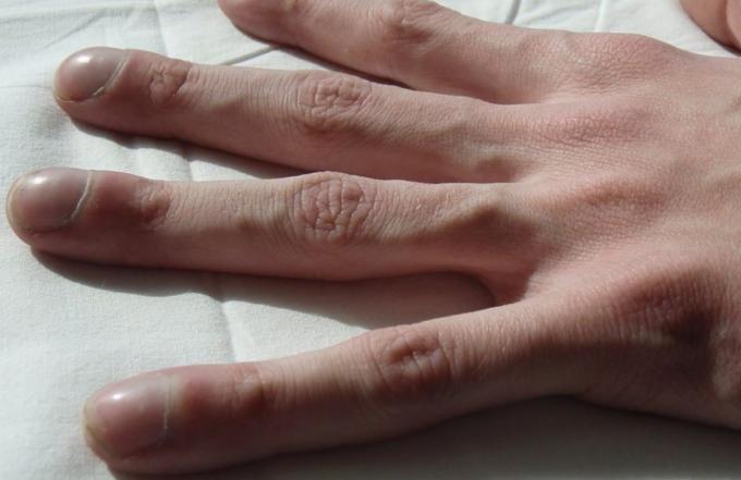 Artrita umflata de la varfurile degetelor, Guta la articulatiile degetelor de la mana
