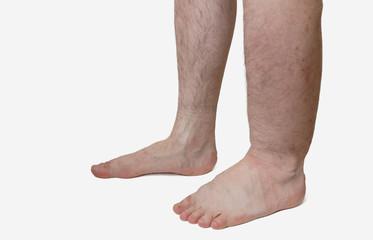 sindromul edemului măduvei de șold