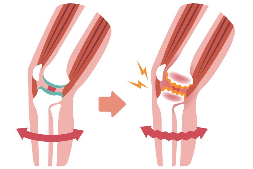 inflamație acută a tratamentului articulației gleznei