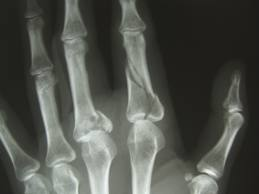 traumatism al articulației metacarpofangaliene a degetului arătător