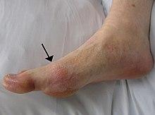 tratamentul artrozei interfalangiene a mâinilor dureri de picior în articulația piciorului
