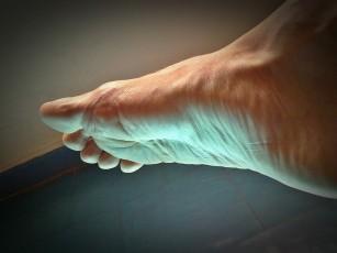 durere în articulațiile piciorului pe picioare dureri de șold cum să amelioreze durerea