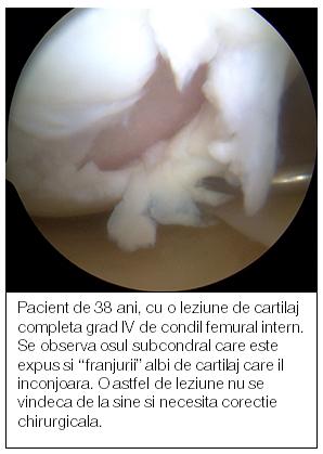 diagnostic de tratament cu artroză